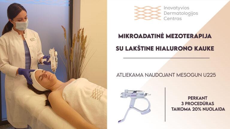 Mezoterapija